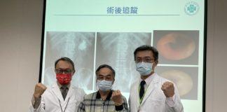 達文西口腔黏膜輸尿管重建手術